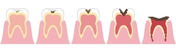 d_34 虫歯の進行絵