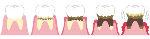 d_40 歯周病進行絵